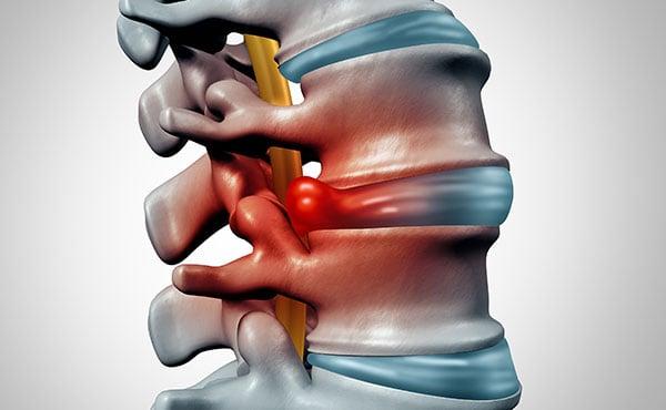 herniated bulging disc