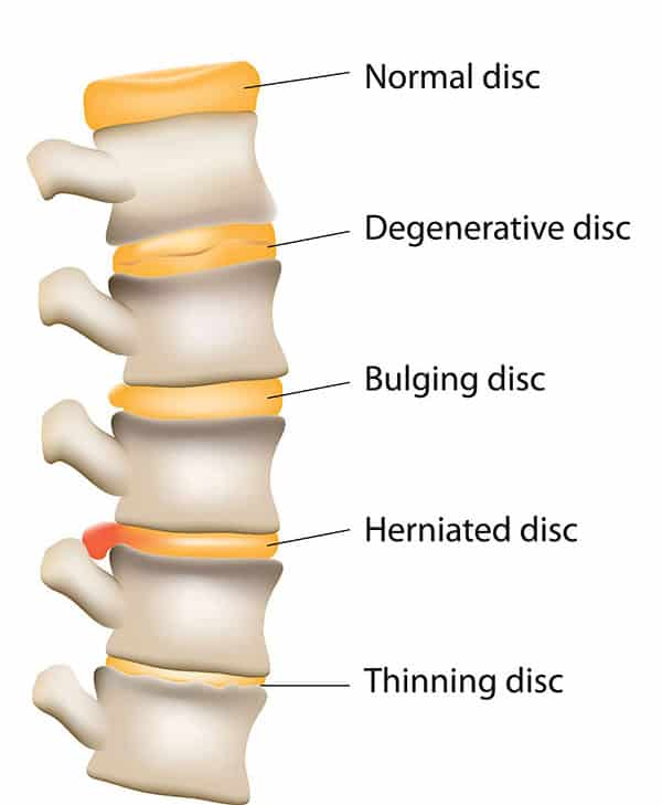Herniated Bulging Disc Chiropractor Cork