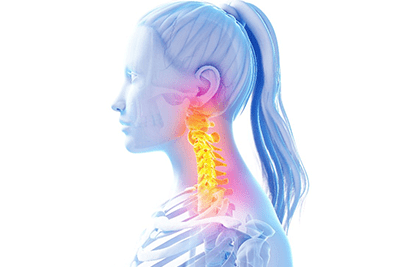 Increased Frequency of Disc Herniation Noted in Patients with Reduced Neck Curve